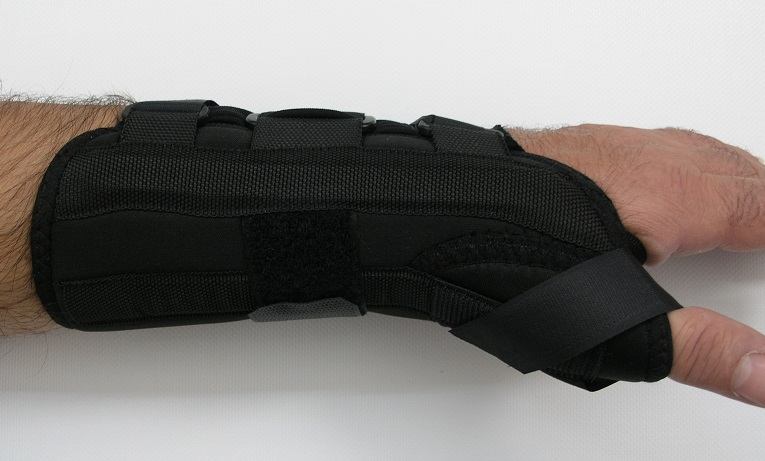 WRIST - After Cast Removal